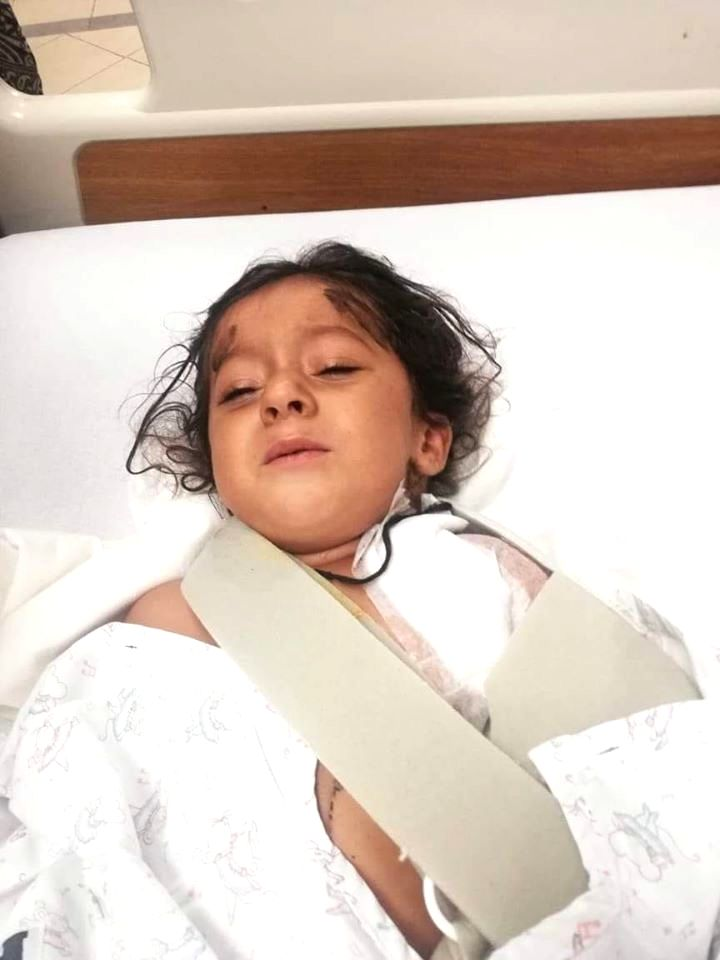 4 year old Bramsh injured in the attack in which her mother was killed allegedly by the government.