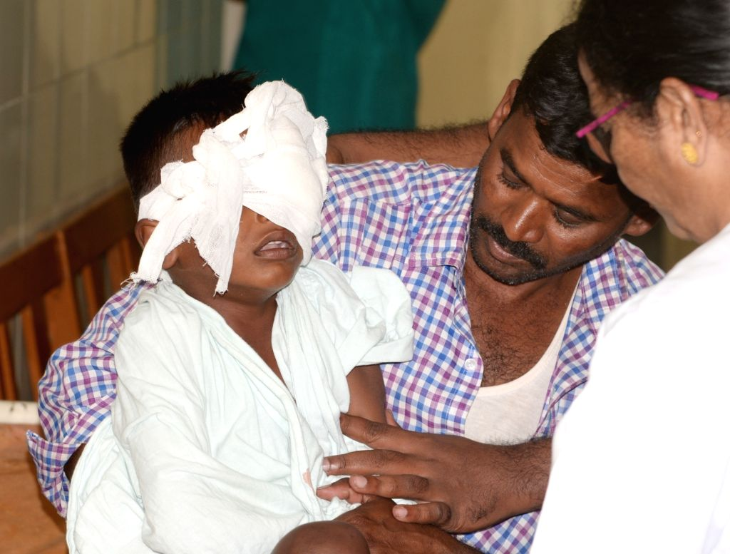 6-year-old Venkatesh, who suffered eye injury while bursting crackers on Diwali being treated at an eye hospital in Bengaluru on Oct 28, 2019.