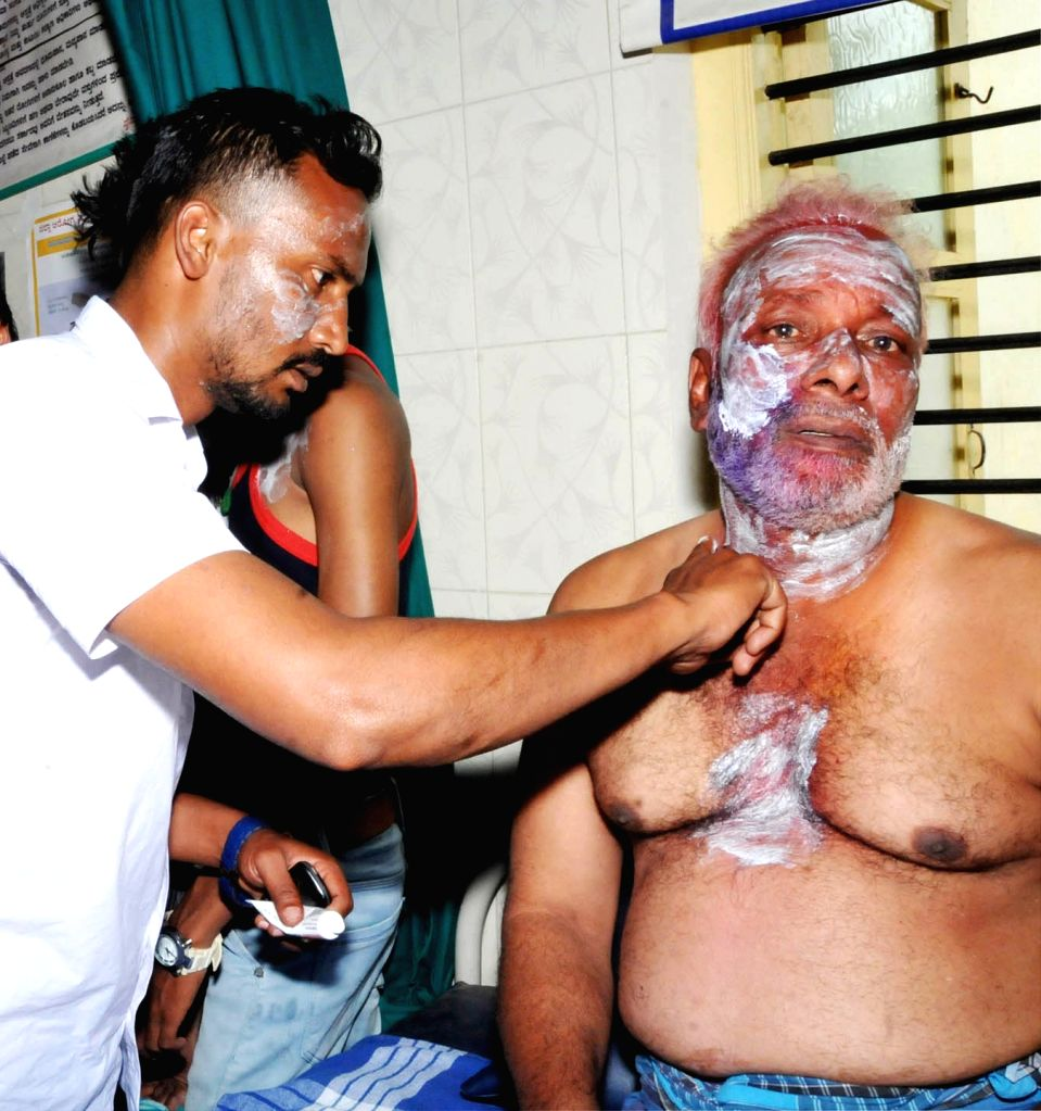 A Congress worker who sustained burn injuries in an acid attack on a party rally after the results of the elections to urban local bodies in Karnataka were announced in Tumkur, Karnataka on ...