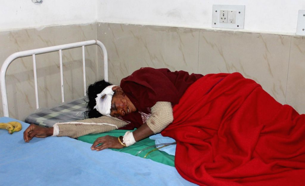 A lady injured in shelling by the Pakistani army on the Line of Control (LoC) being treated at Government Medical College in Jammu on March 1, 2019.