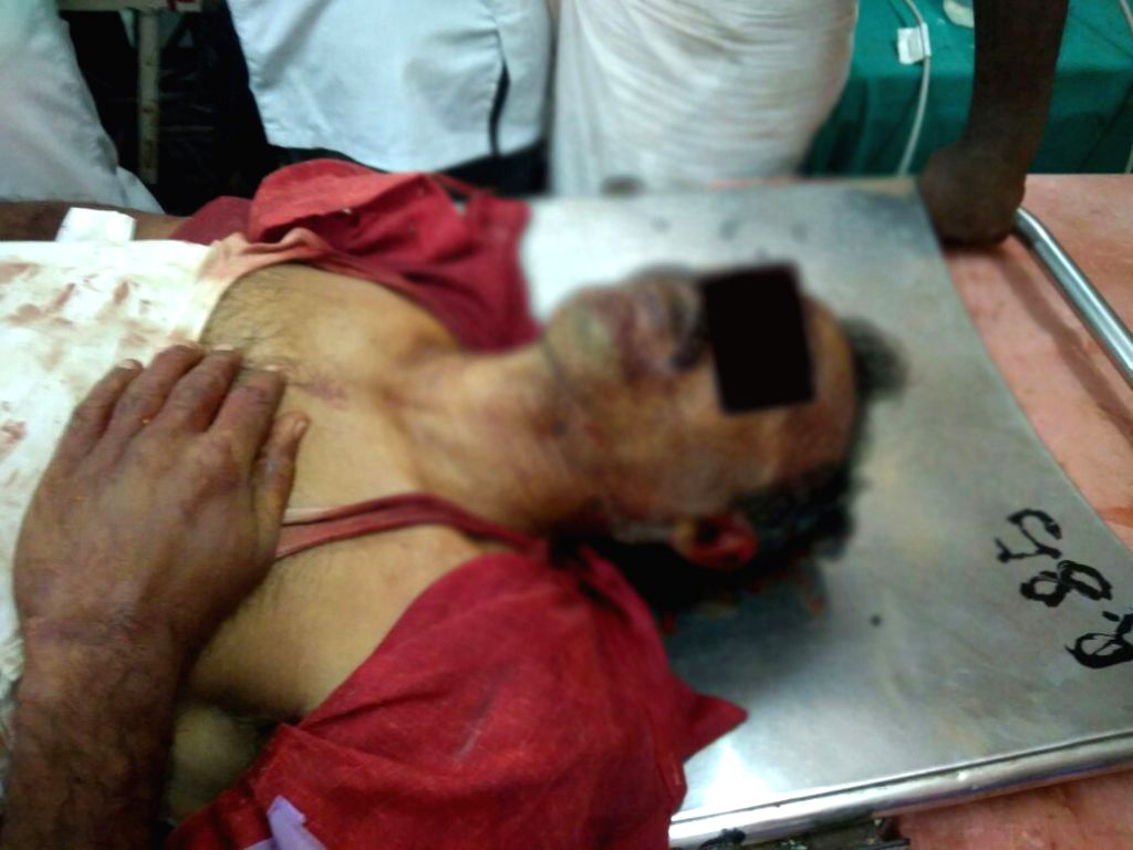 A person injured during protests for the closure of Vedanta's Sterlite copper smelter in Tamil Nadu's Thoothukudi district; in Tuticorin on May 22, 2018. Nine people, including a girl, ...