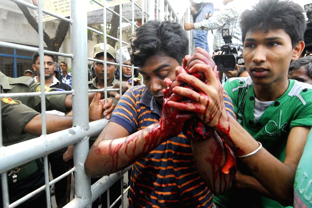 A student who got injured during a clash between interns of Dhaka Medical College and Hospital (DMCH) and Dhaka University (DU) students being taken for treatment in Dhaka, Bangladesh on May 6, 2014.