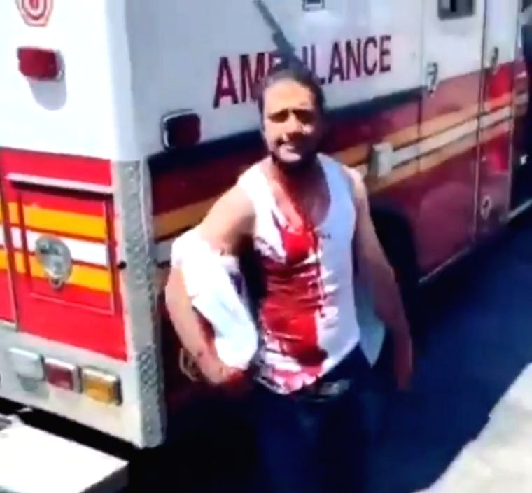 A video has gone viral showing a man in New York walking up to an ambulance to get help following a stabbing incident with a knife stuck on his head, a media report said.
