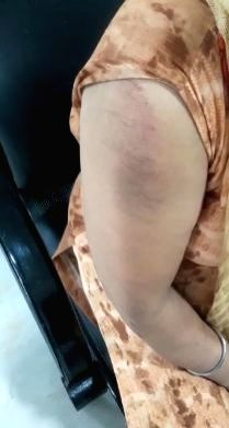 A woman shows her bruises that she sustained in a bag snatching incident in New Delhi on Sep 27, 2019. The incident took place near Madipur metro station in Punjabi Bagh police station ...