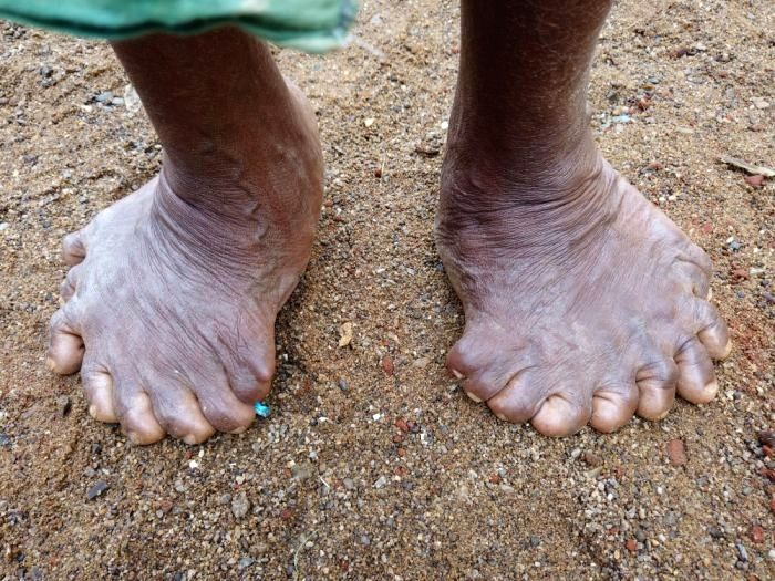 A woman who lives in Kadapada village of Ganjam district of Odisha was born with 12 fingers and 19 toes is doing the rounds on the social media as she is all set to enter the Guinness World Records ...