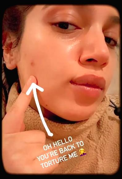 Actress Bhumi Pednekar took to social media on Thursday, to lay bare her pimple woes for fans. - Bhumi Pednekar