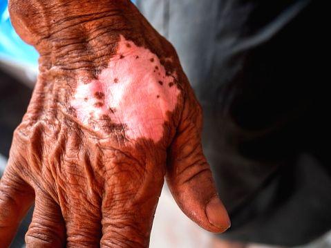 Aiming for zero leprosy