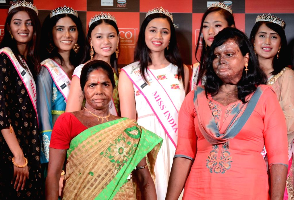 An acid attack survivor during a programme with the winners of fbb Colors Femina Miss India - East Zone, in Kolkata, on April 25, 2019.