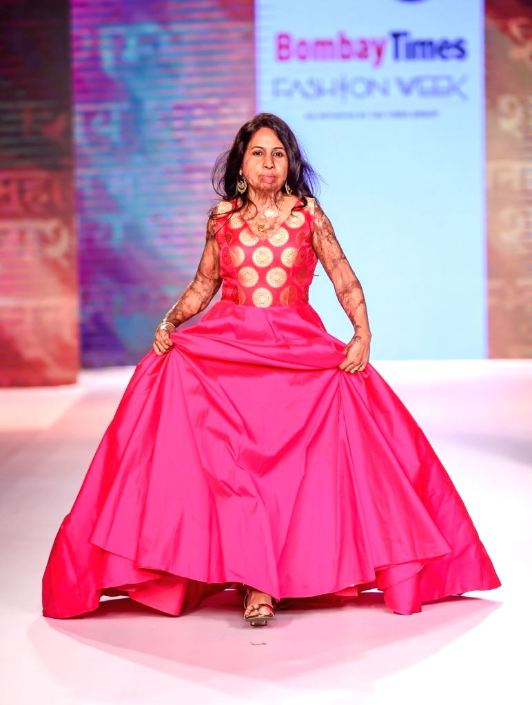 An acid attack survivor walks the ramp on the second day of Bombay Times Fashion Week 2018, in Mumbai on March 31, 2018.