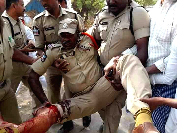 An injured policeman being taken to a hospital after TDP candidate Thikka Reddy's security guard fired in the air to disperse YSRCP activists allegedly attacking him in Andhra Pradesh's ... - Thikka Reddy