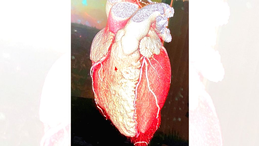 Bollywood heartthrob Hrithik Roshan has shared the shape of his heart! Hrithik, popularly called the Greek God of Hindi films took to Instagram to share a picture of a human heart. He captioned it: ... - Hrithik Roshan