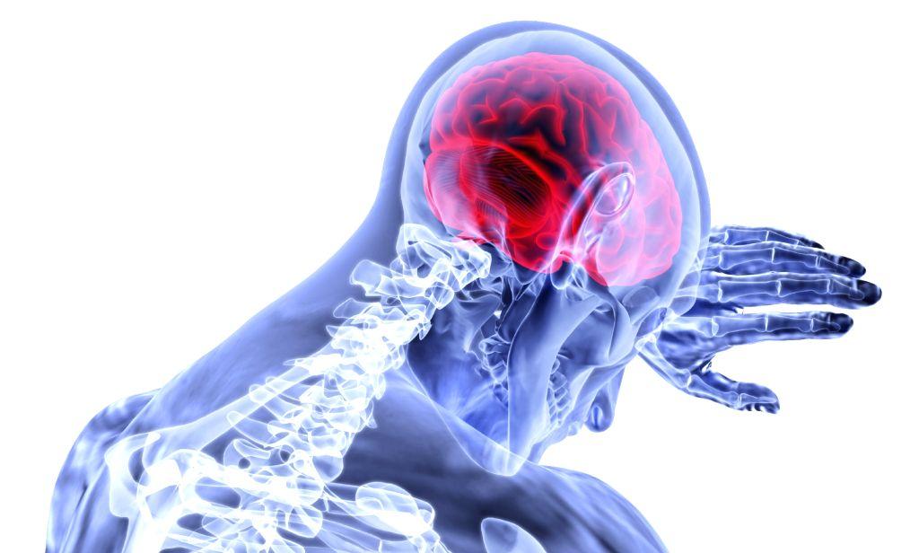 Brain stroke.