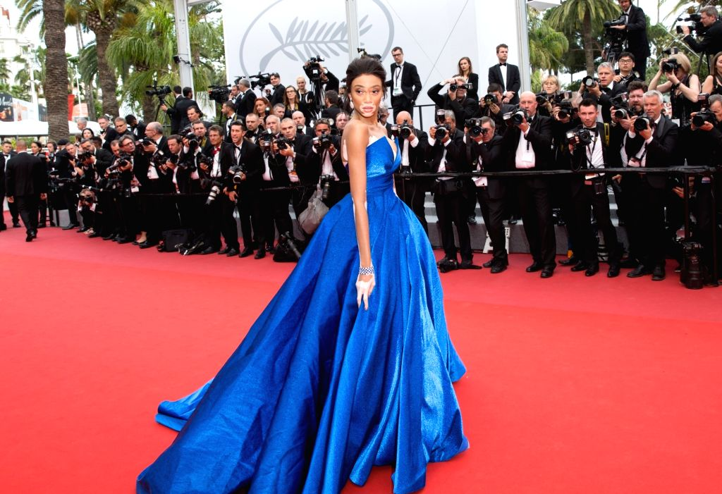 """CANNES, May 18, 2017 - Canadian model Winnie Harlow poses on the red carpet for the screening of the film """"Loveless"""" in competition at the 70th Cannes International Film Festival in Cannes, ... - Winnie Harlow"""