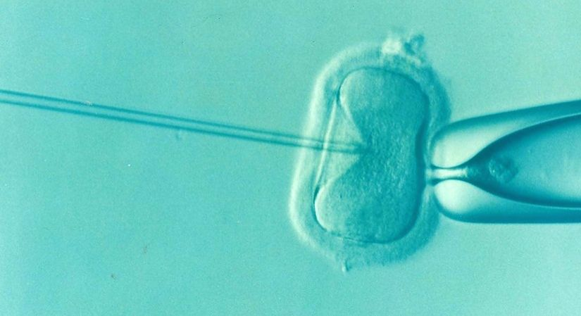 Depression and Anxiety: Leading cause of IVF failure in women.