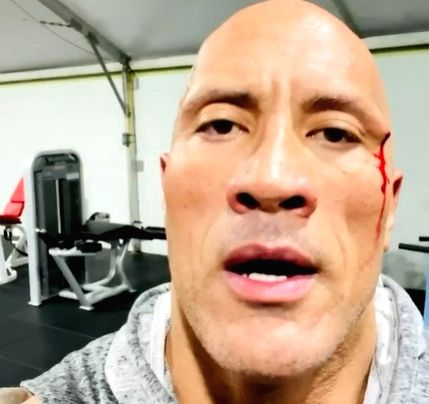 Dwayne Johnson injures face while working out