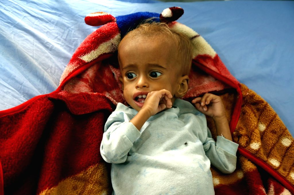 Govt to launch nutrition drive for Severely Acute Malnourished children. (Xinhua/Mohammed Mohammed/IANS)