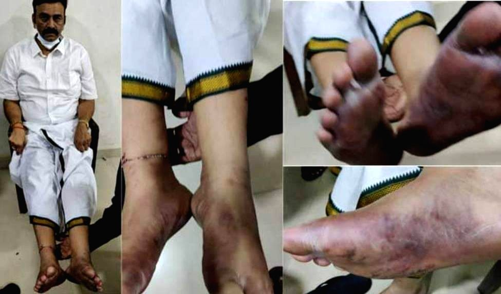 Hyderabad : Police alldgely beaten YSRCP MP Raghurama Krishnam Raju has received a jolt from Andhra Pradesh High Court. The High Court has rejected the bail petition Court made it clear that it could ...