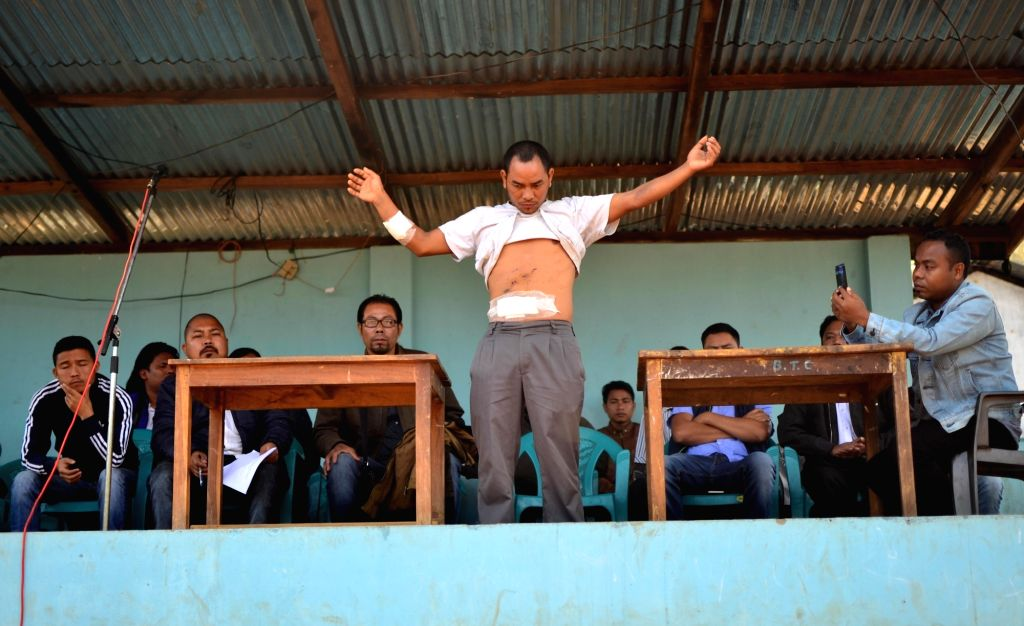 Janrak Sangma, a civilian who was injured during police firing at North Garo Hills shows his injuries marks; in Meghalaya on March 11, 2017. Meghalaya government has suspended two ...