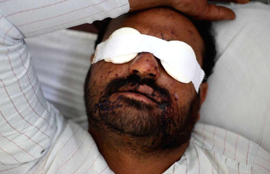 An injured man receives medical treatment at a hospital in Kabul, Afghanistan, July 16, 2014. A vehicle packed with explosives was detonated at a busy market in the ..