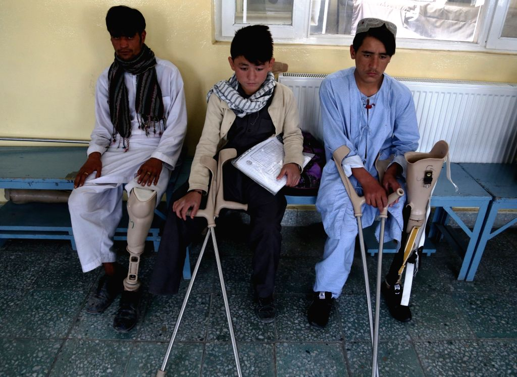 KABUL, Oct. 25, 2016 - People with prosthetic legs wait for treatment at the Orthopedic Center of the International Committee of the Red Cross (ICRC) in Kabul, capital of Afghanistan, Oct. 25, 2016. ...