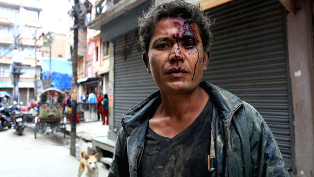 A man is injured after earthquake in Kathmandu, Nepal, April 25, 2015. More than 100 people are so far known to have been killed in a strong earthquake which hit ...