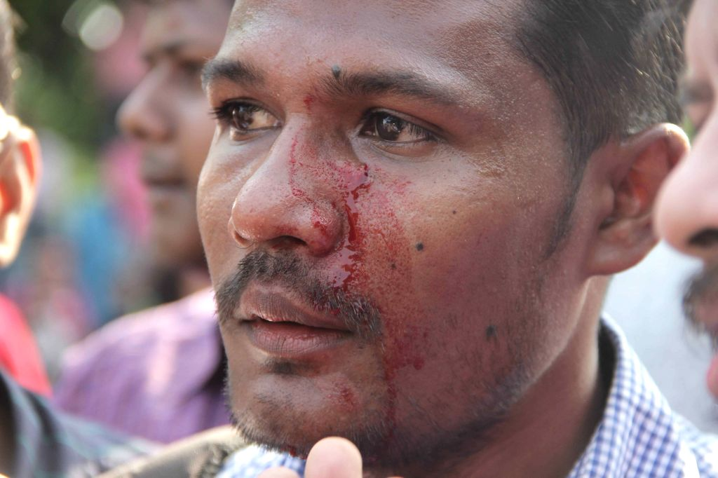 SFI activist injured in police lathi-charge in Kolkata, on April 2, 2015.