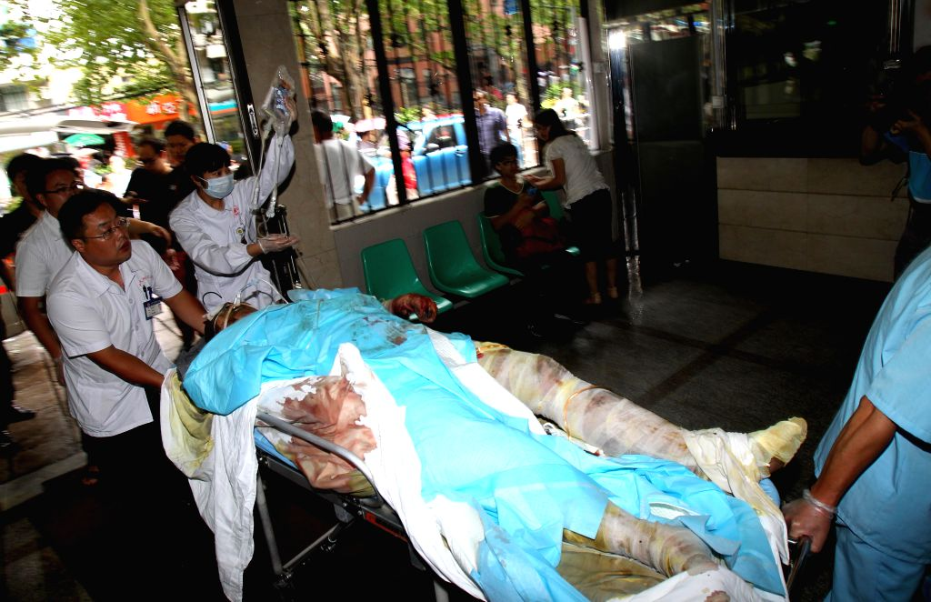 A victim of the factory blast is carried to the Ruijin Hospital in Shanghai, east China, Aug. 2, 2014. A powerful factory blast has killed 65 people and injured over