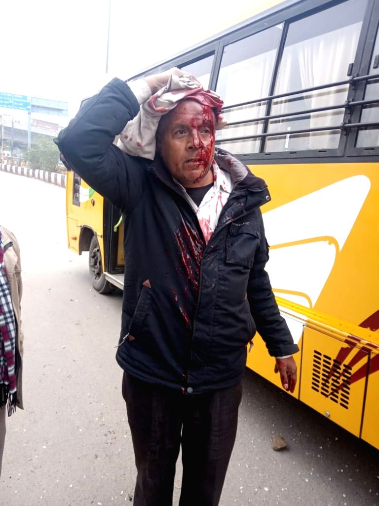 New Delhi: A man who sustained injuries after a protest against the Citizenship Amendment Act (CAA) 2019 turned violent after protesters pelted stones at police personnel, in North East Delhi's Seelmapur area on Dec 17, 2019. As per reports, many bus