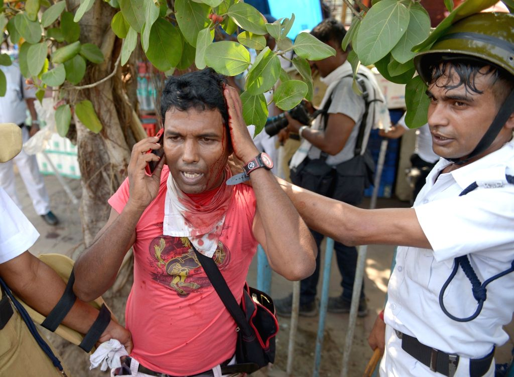 One of the protesters who got injured during a clash with police after a number of Left Front MLAs including its legislature party leader Sujan Chakraborty were detained from outside the ... - Sujan Chakraborty