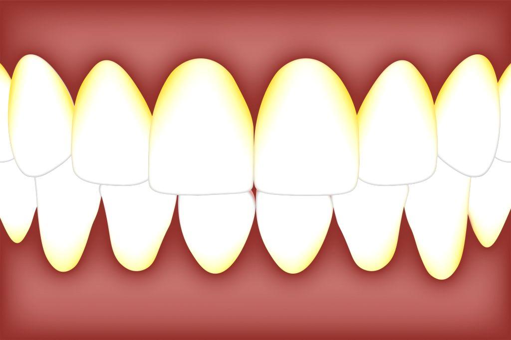 Oral bacteria.