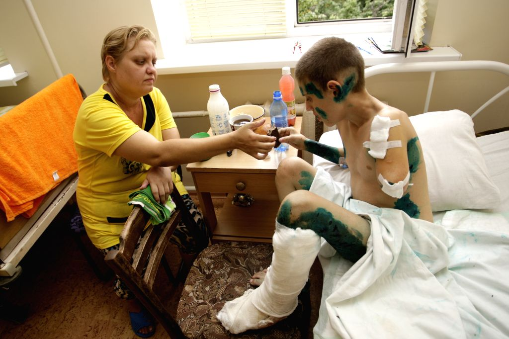 Photo taken on Aug. 15, 2015 shows a 12-year-old boy Andrey(R) and his mother Elena at a traumatological hospital in Donetsk, Ukraine. A week ago Andrey and two ...