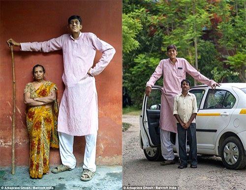 Problems growing taller for 8-feet tall man from Uttar Pradesh.