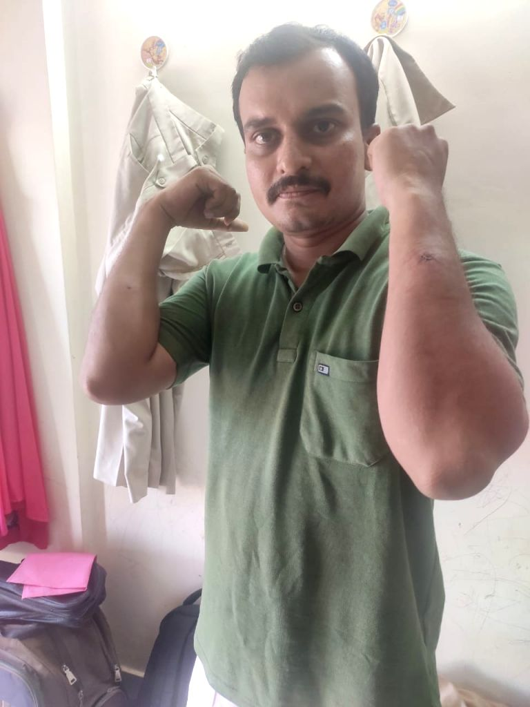 Range Forest Officer (RFO) Rajendra R. Patil, injured on the arms, thighs and ankle while grappling a wild leopard with his bare hands in a cashes plantation in Nivli village, Ratnagiri, on Friday evening, but saved himself, his colleagues and villag - Rajendra R. Patil