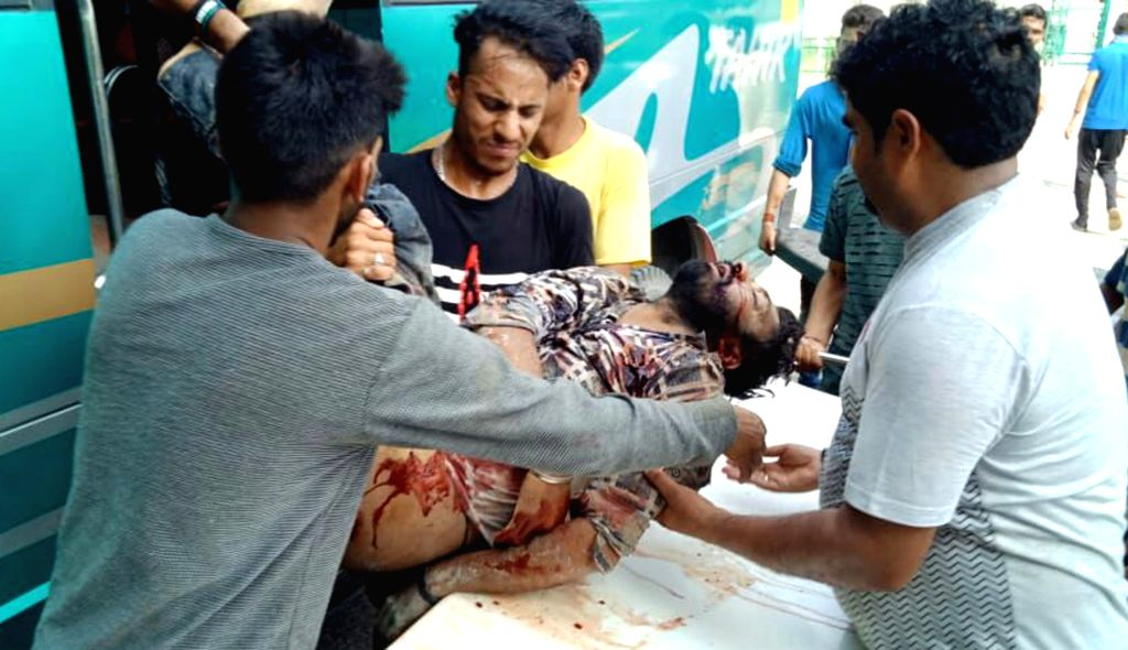 : Reasi: A person injured in a landslide being taken for treatment, in Jammu and Kashmir's Reasi district on July 15, 2018. Five persons were killed and 25 injured in the landslide. (Photo: ...