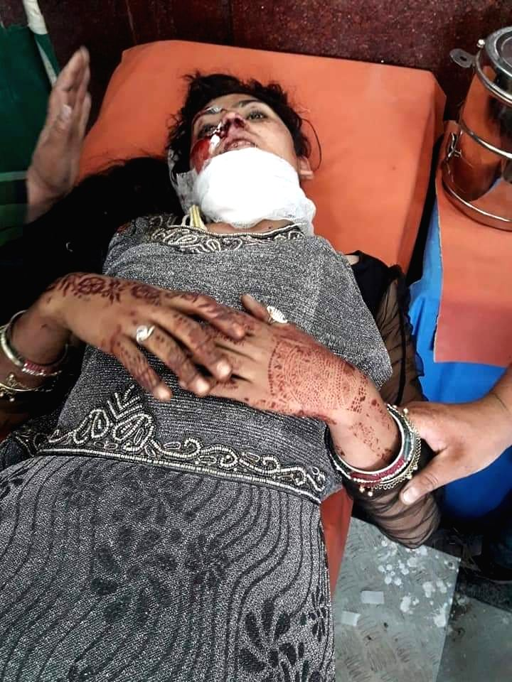 Srinagar: One of the injured students receiving treatment at a Srinagar hospital after a vehicle carrying them went out of control near Pir Ki Gali on Mughal Road and plunged into a deep gorge in Jammu and Kashmir's Poonch district, on June 27, 2019.