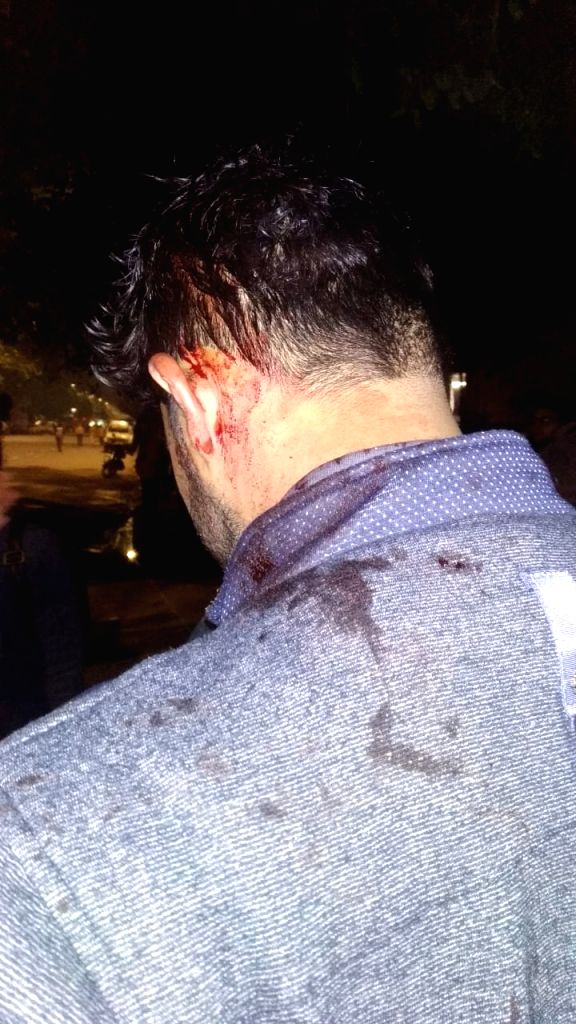 Student injured in police action.
