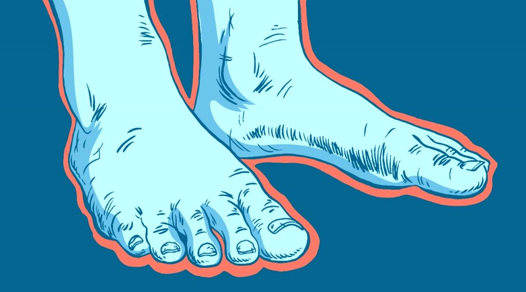 Study supports link between coronavirus and 'Covid toes'.