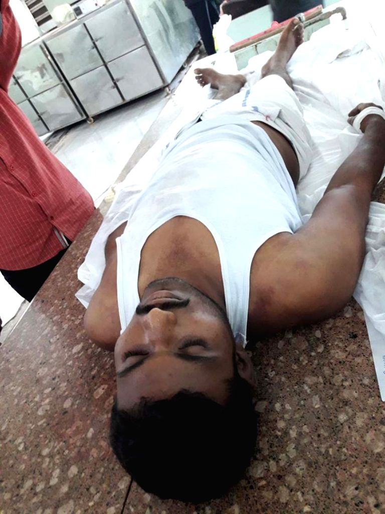 The body of gangster M Sunil Kumar, who was found dead under suspicious circumstances in Kadapa Central Jail on the night of April 6, 2018. - M Sunil Kumar