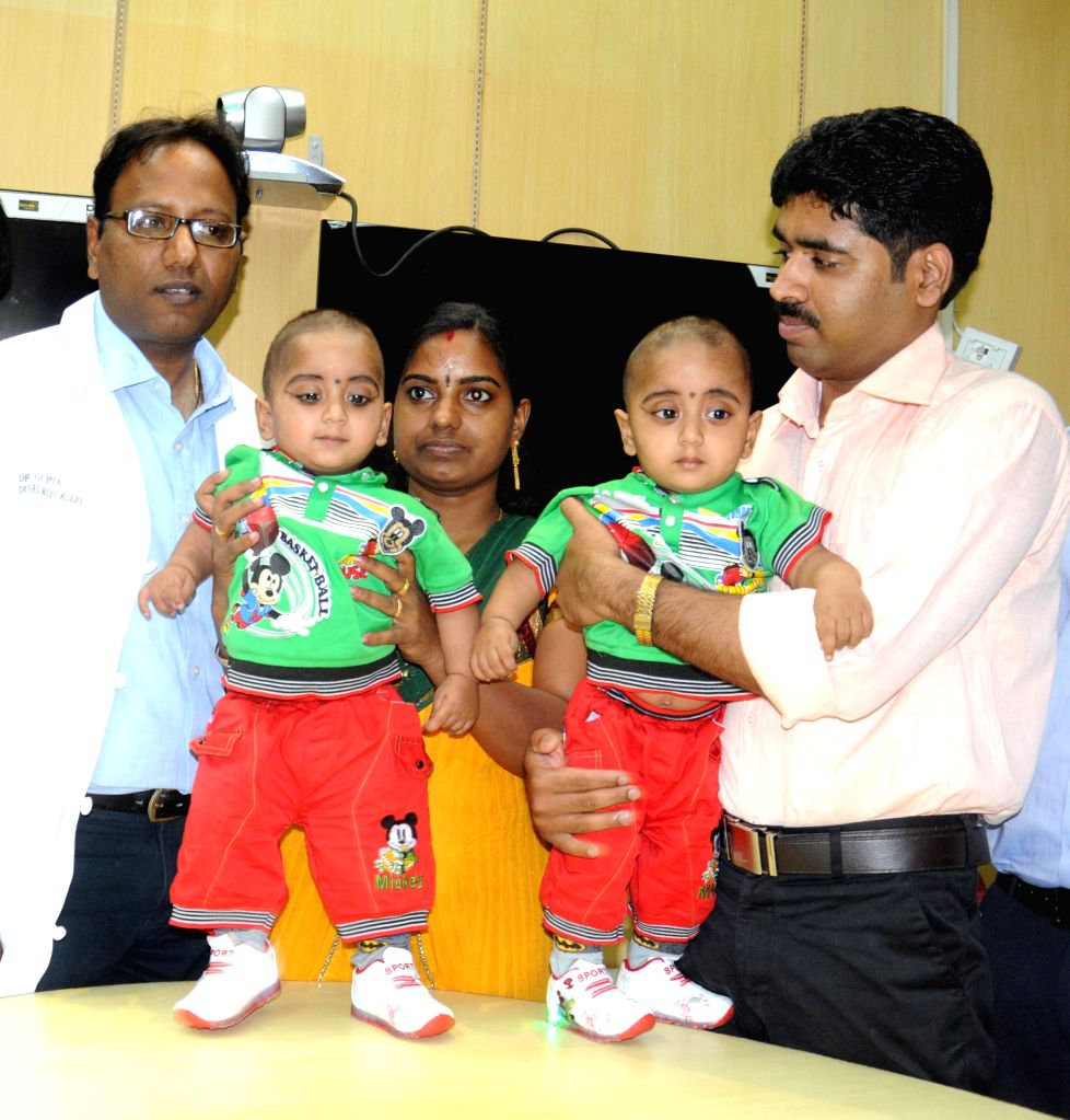The conjoined twins Adhi and Adhri during a press conference with their parents and Dr Deepak Gupta after undergoing a surgery which successfully separated them, at AIIMS in New Delhi on April 16, ... - Deepak Gupta