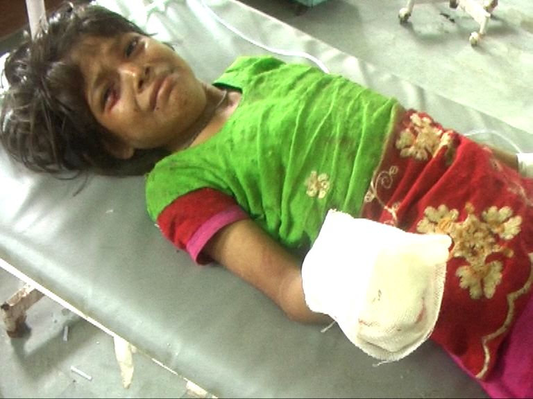 : The girl who sustained injuries in her hand after a blast took place in her schoolbag in Dausa of Rajasthan on Aug 5, 2016.