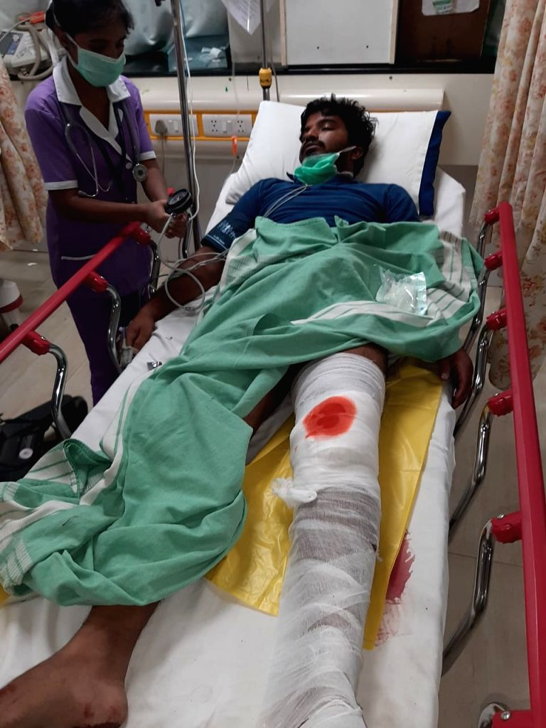 The man who was shot in his leg by the Bengaluru police after he attacked police and attempted to escape from custody for an earlier crime, on March 26, 2020.