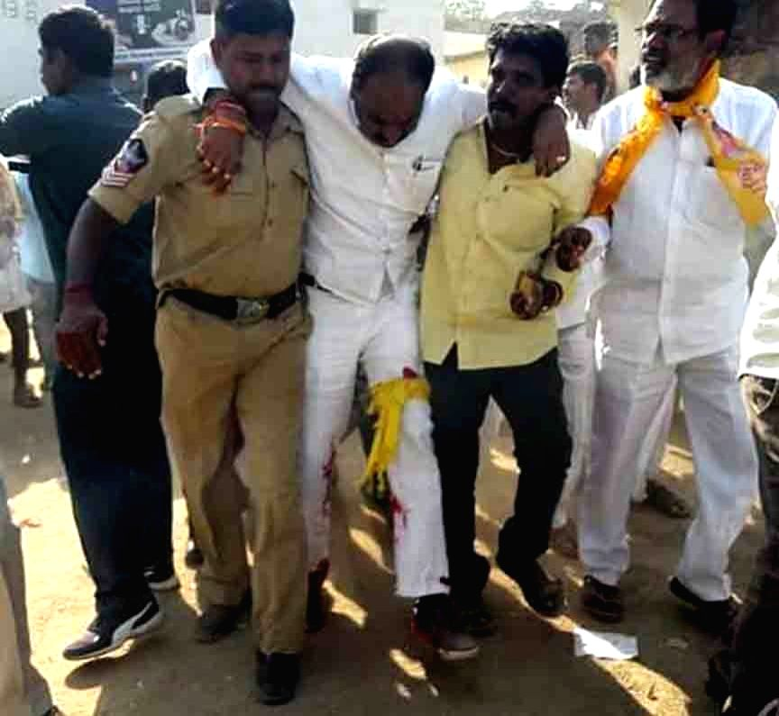 Thikka Reddy, a candidate of the ruling Telugu Desam Party (TDP) from Mantralayam Assembly constituency, got injured after his security guard opened fire in the air to disperse YSRCP ... - Thikka Reddy