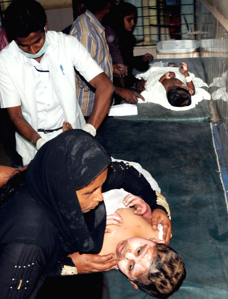 A child who was injured in an explosion in an auto rickshaw's gas cylinder at Chikkanayakanahalli being treated at a hospital in Tumkur, Karnataka on Jan 22, 2015. Reportedly 21 people were ..