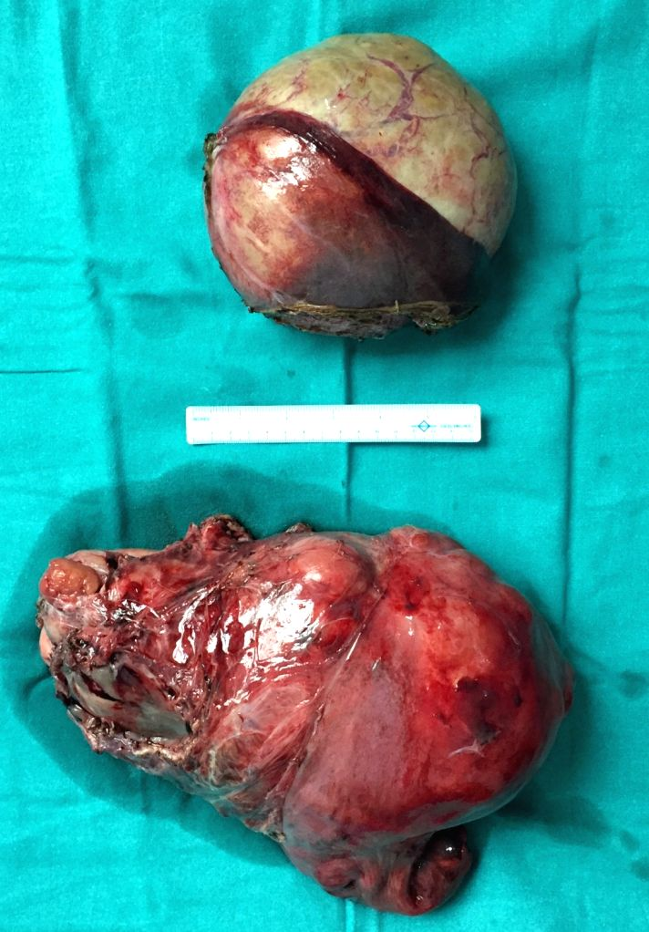 Two tumours (both above 1 kg) removed from Tanzanin patient at Sir Ganga Ram Hospital.