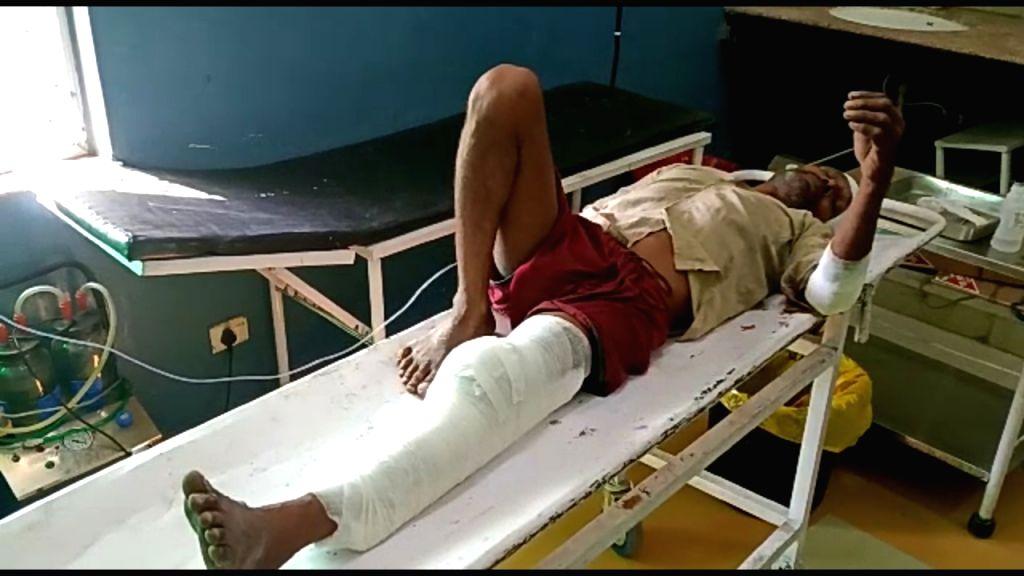 Villager accuses BJP MLA of beating him, left leg broken.