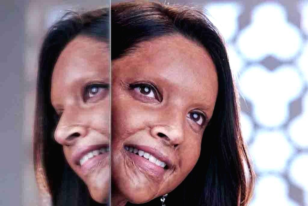 Deepika's acid attack survivor look unveiled.