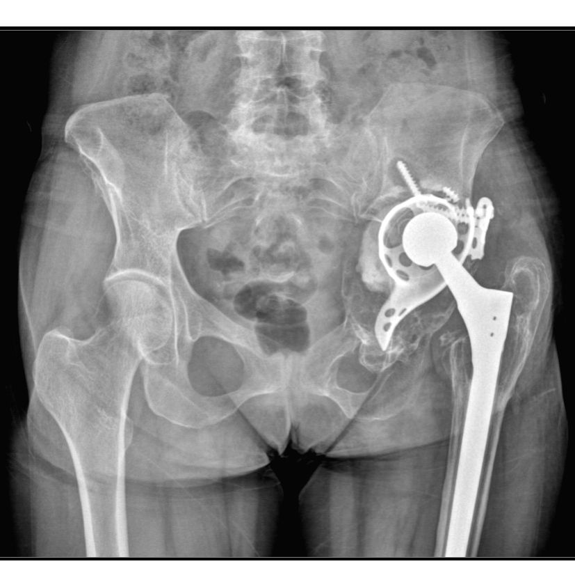 Fortis hospital conducts largest 3D printed hip implant in India.