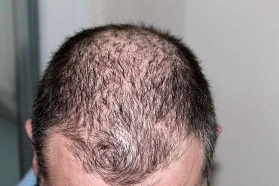 Gene linked to balding may up Covid severity in men