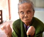 Old woman gets Aadhaar sans biometrics for pension
