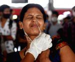 Bihar clocks anomalies in Covid test reports